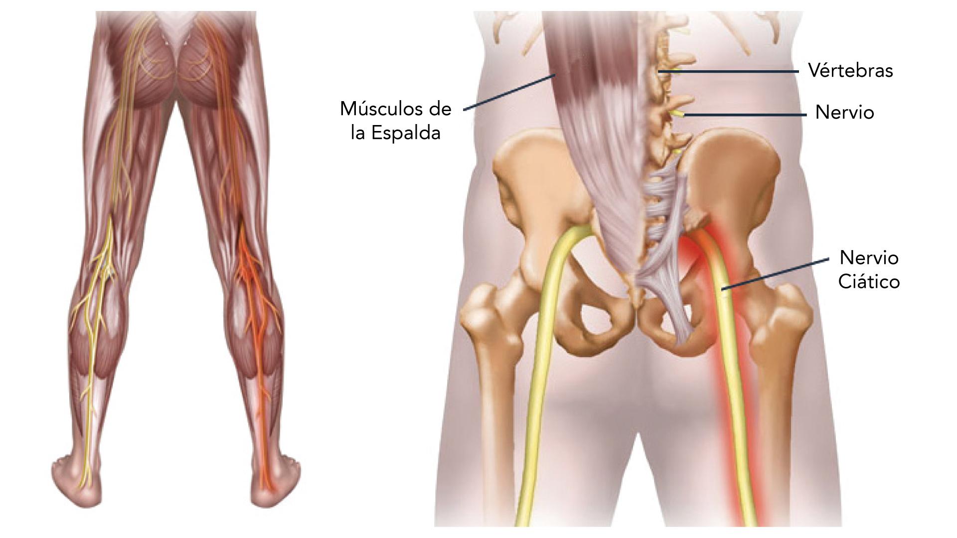 de qué lado corre el nervio ciático
