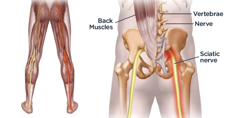 how can i cure sciatic nerve pain