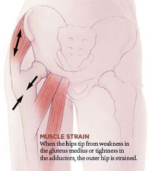 Muscle Strain and Hip Joint Pain