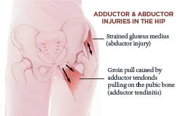 Adductors and Abductor Stretches for Hip Injuries