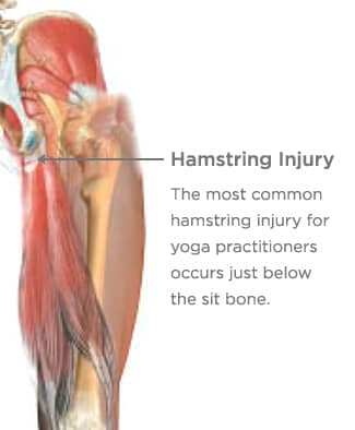 Healing (or Preventing) Hamstring Injuries
